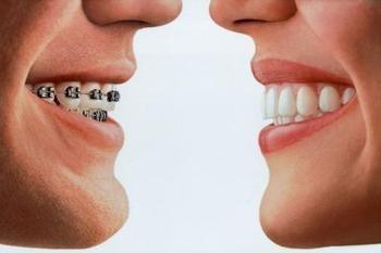 Ορθοδοντικά προβλήματα χαμόγελο όμορφα δόντια σιδεράκια